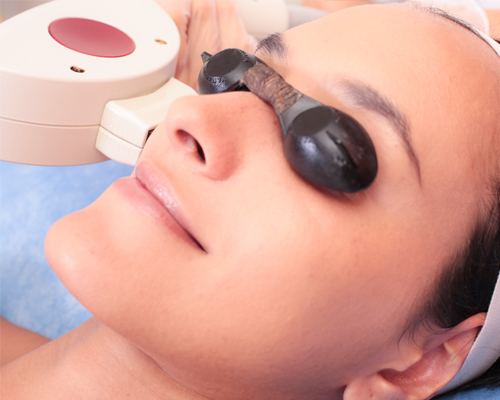 VASITOS EN ROSTRO